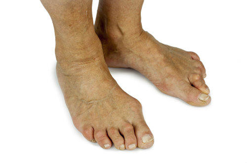 Bunions: Two Options for Bent Toe Joints
