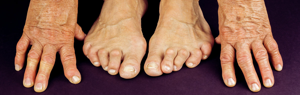 Hammer toe: Causes, symptoms, and treatment